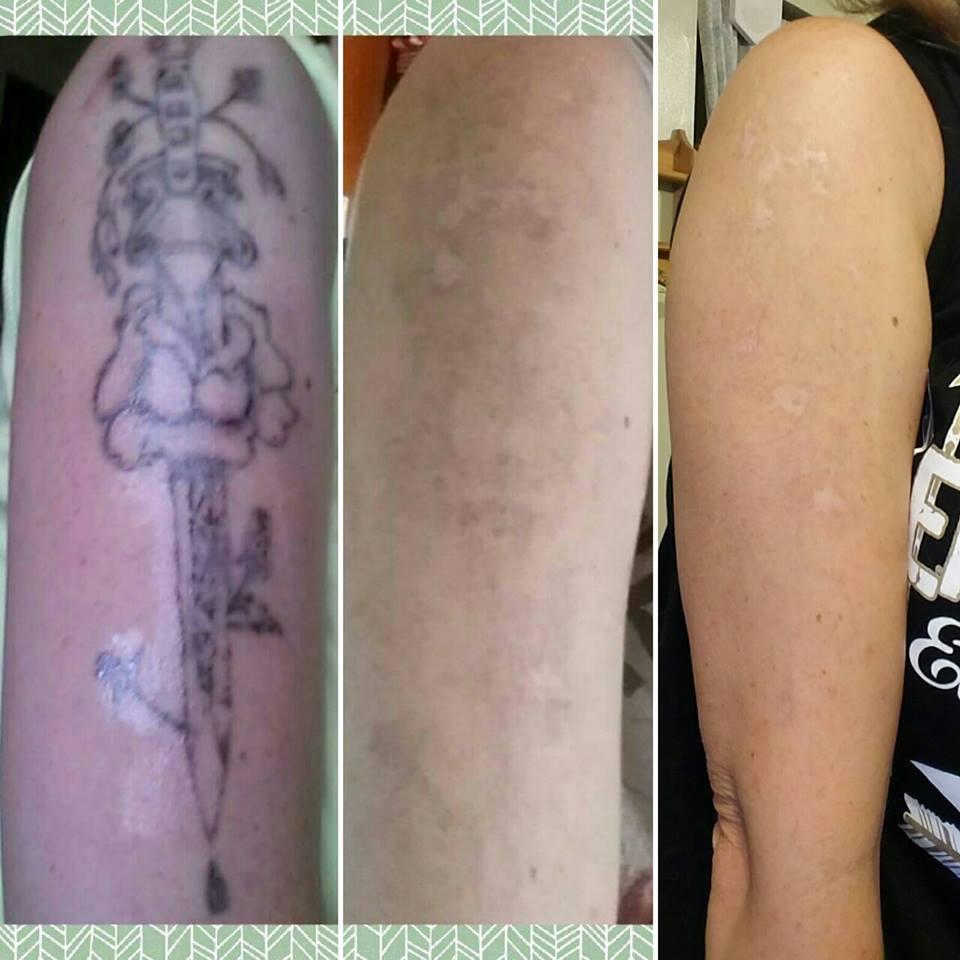 Laser Tattoo Removal Prices Dallas|Plano|Frisco|Addison