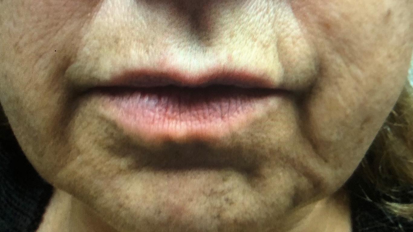 Before Facial Filler Treatment
