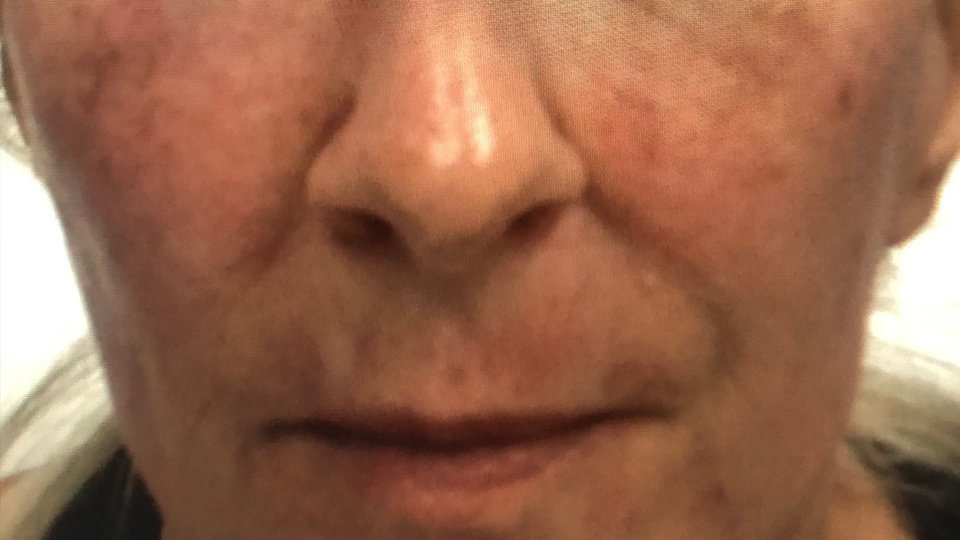 Before Photo Facial Treatment
