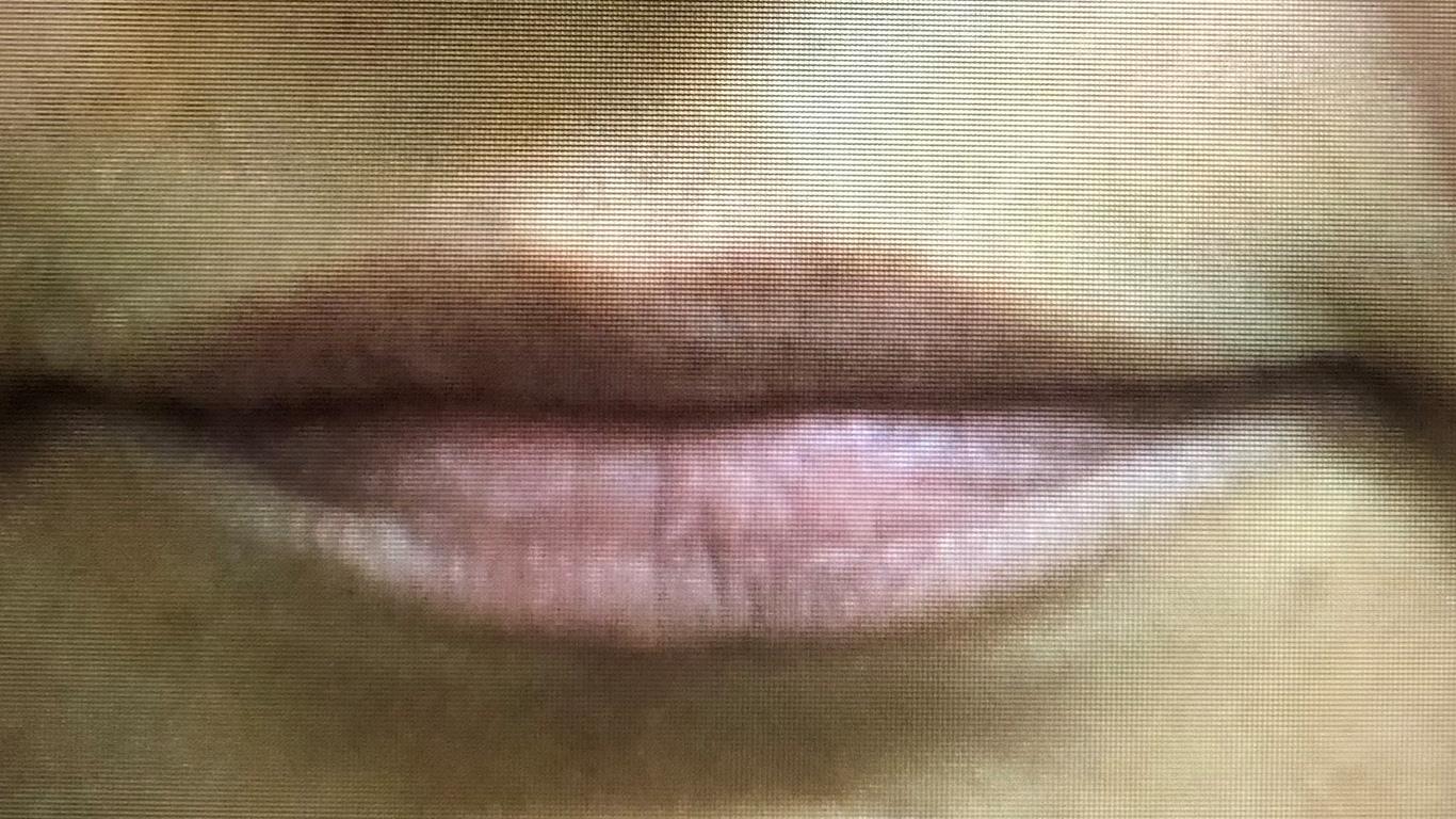 Before Lip Filler Treatment