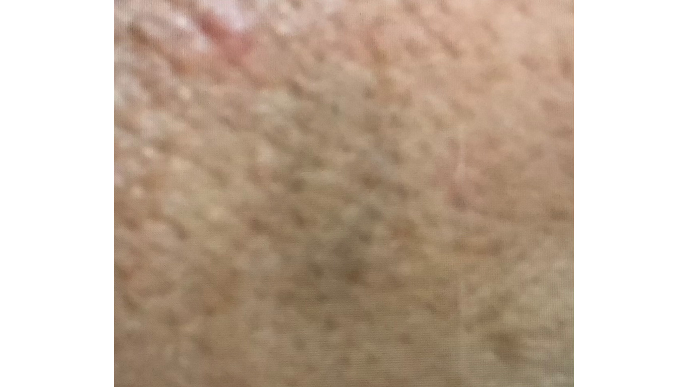 Before Tattoo Removal Treatment