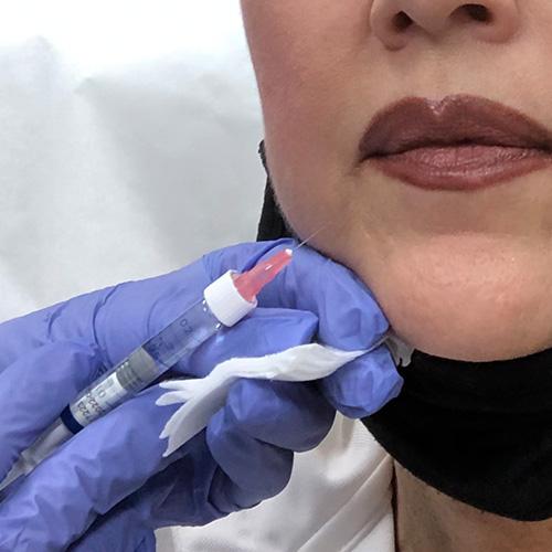 derma-aesthetics-and-laser-center-treatment-facial-filler