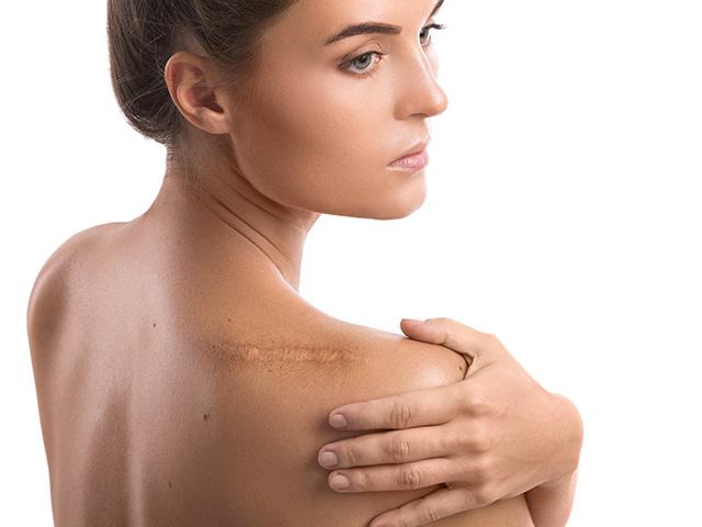 derma-aesthetics-and-laser-center-scars