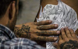 Laser Tattoo Removal Scars Dallas-Plano-Frisco-Addison