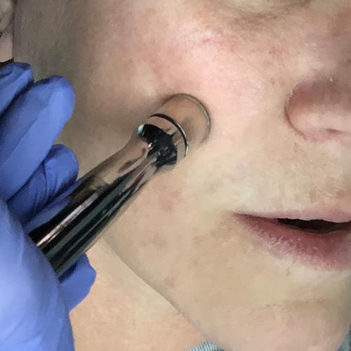 derma-aesthetics-and-laser-center-thumbnail-microdermabrasion